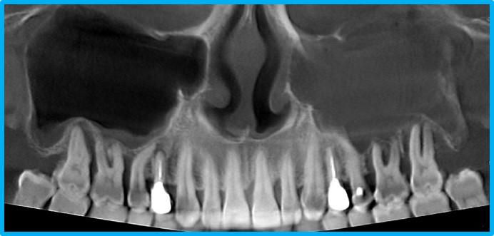 Оценка дефектов костной ткани и пародонтогенных синуситов