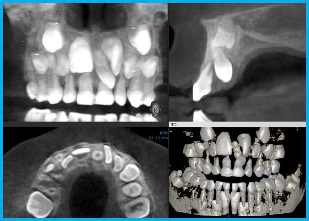Рентген позволяет провести диагностику скрытых кариозных полостей и оценить состояние твердых тканей